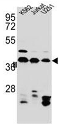AP52068PU-N - hnRNP-C1/C2 / HNRNPC