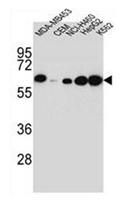 AP52089PU-N - Haptoglobin