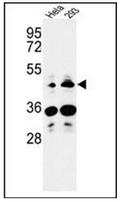 AP52102PU-N - HS3ST2 / 3OST2