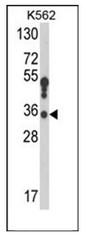 AP52111PU-N - 17-beta-HSD3 / HSD17B3
