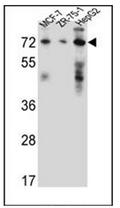 AP52112PU-N - 17-beta-HSD4 / HSD17B4