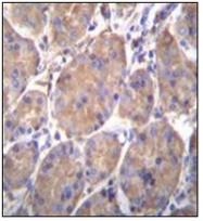 AP52118PU-N - Endoplasmin / HSP90B1 / TRA1