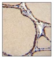 AP52127PU-N - Serotonin receptor 2B (HTR2B)