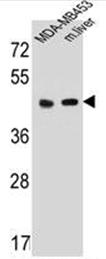 AP52130PU-N - Serotonin receptor 4 / HTR4