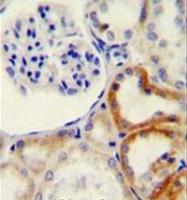 AP52134PU-N - HYAL2 / Hyaluronidase-2
