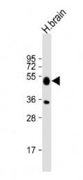 AP52135PU-N - IDO2 / INDOL1