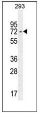 AP52136PU-N - IRF2BP2