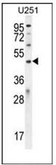 AP52142PU-N - IPCEF1 / PIP3-E
