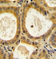 AP52146PU-N - CD152 / CTLA4