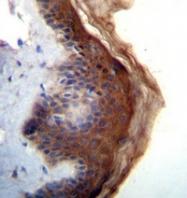 AP52191PU-N - IL1F5 / IL1L1