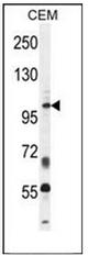 AP52214PU-N - INPP5B / 5PTase 2