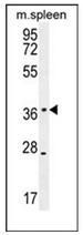 AP52381PU-N - KLHDC1