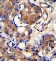 AP52400PU-N - Kininogen-1