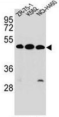 AP52408PU-N - Kremen protein 2