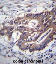 AP52411PU-N - Cytokeratin 12