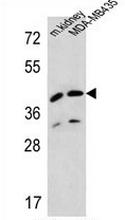 AP52435PU-N - Duranin