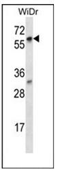 AP52443PU-N - LARP7