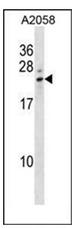 AP52454PU-N - Lipocalin-8