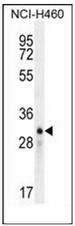 AP52455PU-N - Lipocalin-9