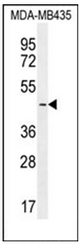 AP52463PU-N - LEF1
