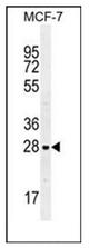AP52468PU-N - Galectin-3