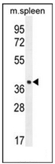 AP52475PU-N - LHFPL5 / TMHS