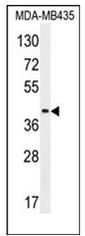 AP52480PU-N - CD85f / LILRA5