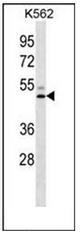 AP52492PU-N - LIPC / Hepatic lipase