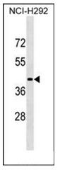 AP52499PU-N - Lipase member N / LIPN