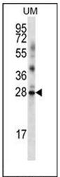 AP52548PU-N - LRRN4CL