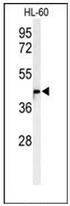 AP52576PU-N - METT11D1