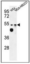 AP52590PU-N - Tricellulin