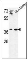 AP52614PU-N - MAT2B