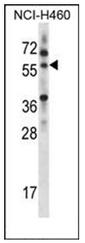 AP52699PU-N - MINPP1