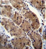 AP52705PU-N - Motilin receptor