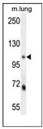 AP52708PU-N - MLX-interacting protein