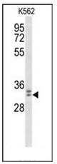 AP52729PU-N - MORG1
