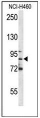 AP52737PU-N - Myeloperoxidase