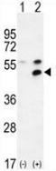 AP52738PU-N - MPP1