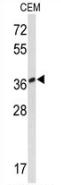 AP52769PU-N - MTNR1A