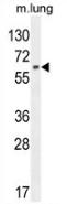 AP52860PU-N - NFE2L1