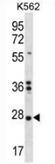 AP52882PU-N - NKAIN1 / FAM77C