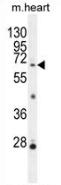 AP52888PU-N - NKPD1