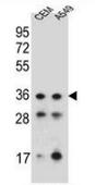 AP52889PU-N - NKX1-1