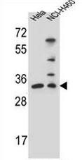 AP52951PU-N - NTH1