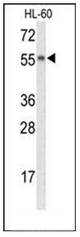 AP52981PU-N - Nyctalopin