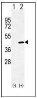 AP52994PU-N - Mimecan