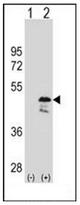 AP52995PU-N - GTPBP9 / OLA1