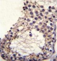 AP53126PU-N - Otoancorin / OTOA