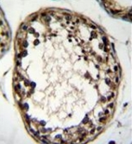 AP53131PU-N - OTUD1